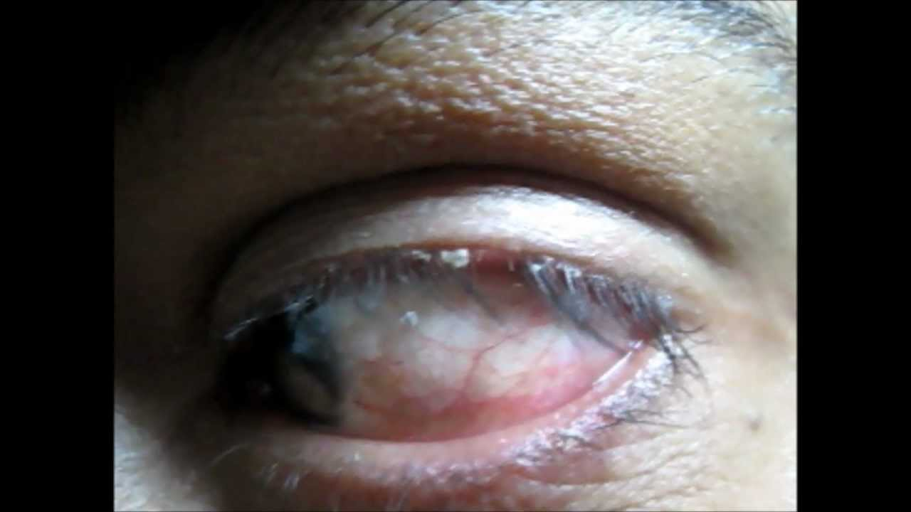 Blepharitis Treatment Dandruff Over Eyelids Youtube