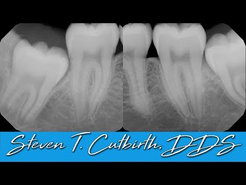 Extraction Of Four Impacted Wisdom Teeth