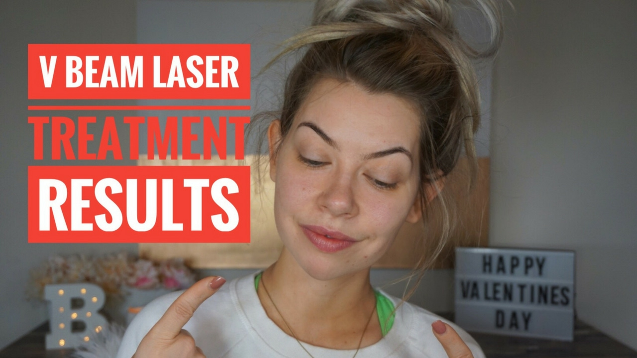 V Beam Laser Treatment Results | Part 2
