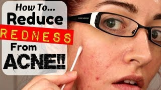 HOW TO: REMOVE REDNESS FROM ACNE & SCARRING! *REQUESTED!* Thumbnail