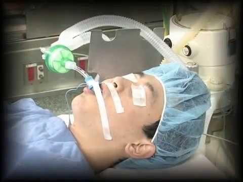 衛教鼻胃管灌食 | Doovi