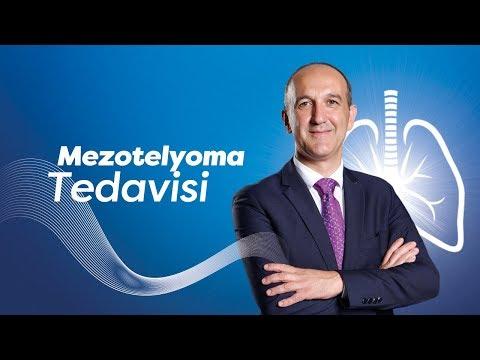 Mezotelyoma Tedavisi — Prof. Dr. Hasan Batırel