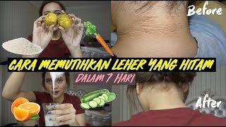 Cara Mencerahkan Kulit Leher/Tengkuk Dalam 1 Minggu!! | Dinda Shafay (Bahasa)