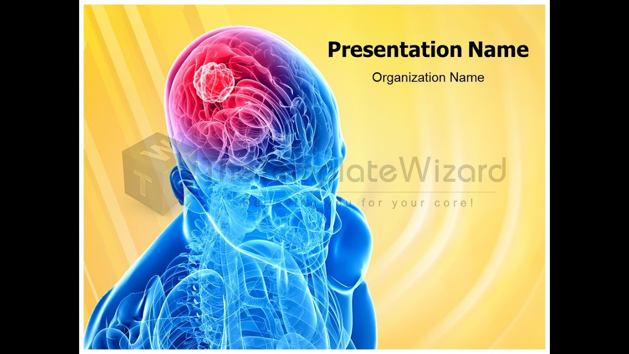 Brain cancer medical powerpoint presentation template by brain cancer medical powerpoint presentation template by thetemplatewizard com youtube toneelgroepblik Choice Image
