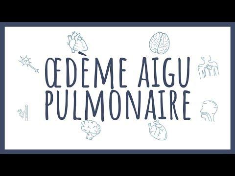 """Sémiologie Cardiaque - Œdème Aigu Pulmonaire """"OAP"""""""