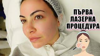 ПЪРВА ЛАЗЕРНА ПРОЦЕДУРА + как излекувах проблемна кожа 💕