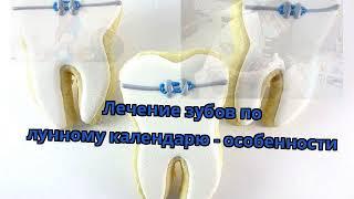 Лечение зубов по лунному календарю - особенности