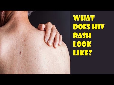 What Does HIV Rash Look Like? - How to Identify an HIV Rash?