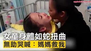 雲南女童身體如蛇扭曲 無助哭喊:媽媽救我 | 台灣蘋果日報