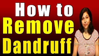 How to Remove Dandruff Thumbnail