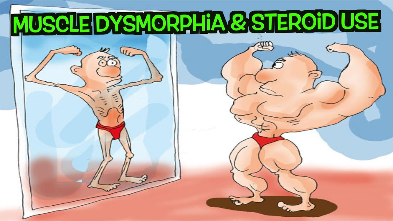 muscle dysmorphia and steroids