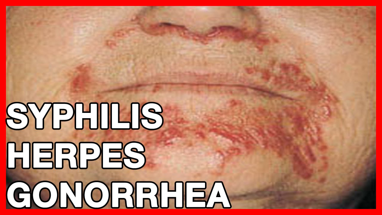 Symptoms Of Syphilis, Herpes, Gonorrhea  What Are Stds -1044