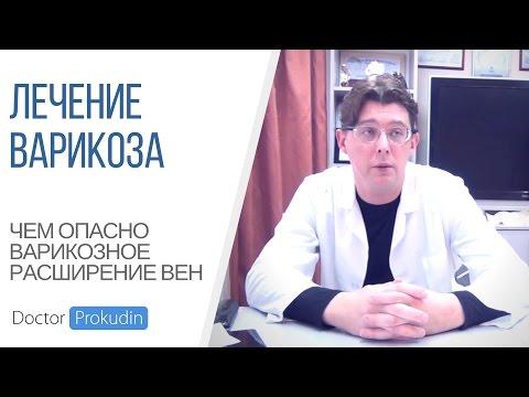 Лечение варикоза: Сочи, Ростов-на-Дону