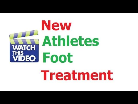 How to cure Athlete's Foot Quickly, Athlete Foot cream, Athlete's Foot Treatment