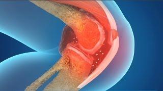 무릎관절염, 연골을 재생시키는 수술없는치료