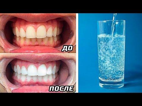 Как можно отбелить зубы в домашних условиях за 1 день без вреда