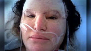 Cosmetic Injections Disfigured My Face!