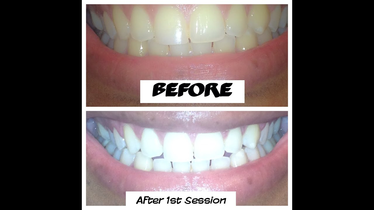get white teeth at home vtwctr
