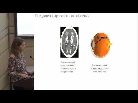 Евсюкова Е.А. Диабетический кетоацидоз: актуальность проблемы.   инфомедфарм   диалог
