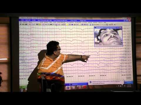 An EEG introduction
