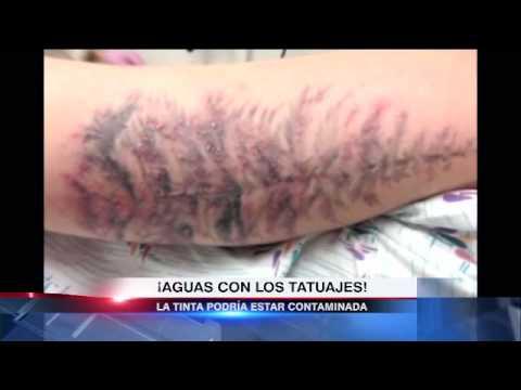 Peligro De Tatuajes Infectados Youtube