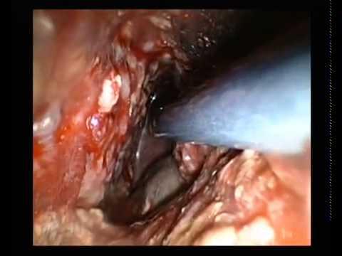 Acute Pancreatitis, videoscopic assisted debridement for necrotizing pancreatitis