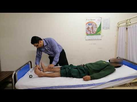 Neurological examination of lower limbs.(GBS)