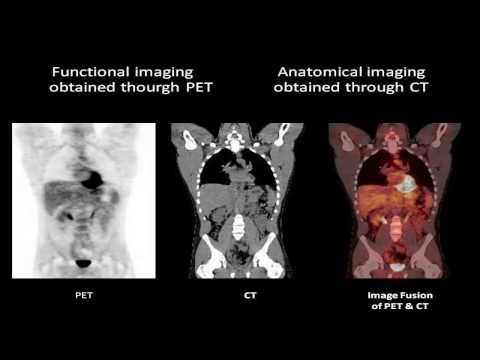 PET-CT Positron Emission Tomography - Computed Tomography