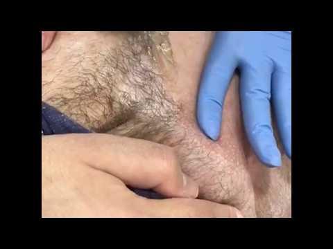 Центр эпиляции - шугаринг, эпиляция бикини, восковая