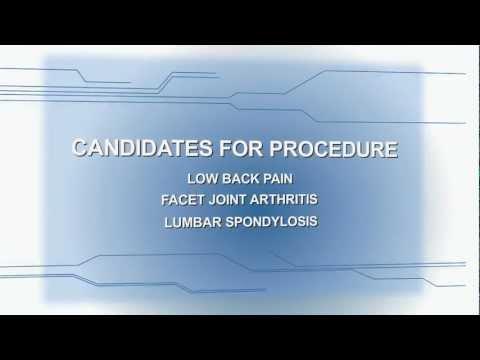 Lumbar Facet Syndrome - Physiopedia