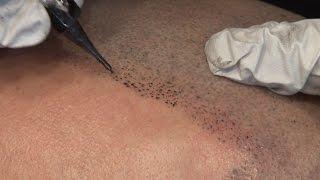 Micro Scalp Pigmentation Los Angeles 2016 | Deja Vu Hair Studio | Tamir Melamed | Hair Loss Solution