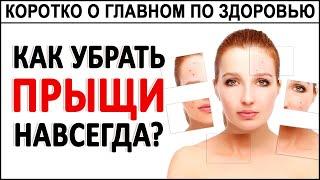 Как избавиться от Прыщей акне угрей навсегда Как очистить кожу и сделать её идеальной