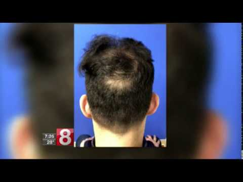 Coping with trichotillomania - hair pulling -  Scott boden, MD
