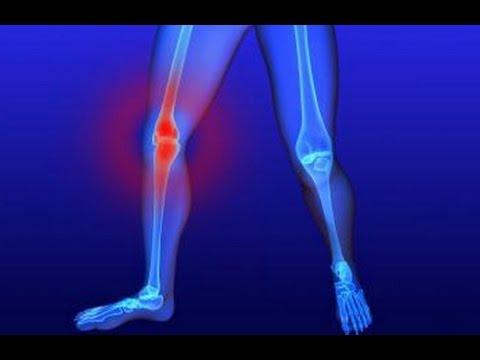 Лечение суставов народными средствами: проверенные