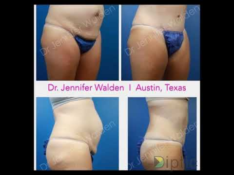 Abdominoplasty (Tummy Tuck) Before and After