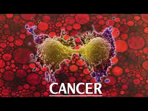 Cancer is the 2nd Biggest Killer: Report