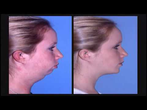 Kentucky Orthodontics & Invisalign: Class II Jaw Surgery