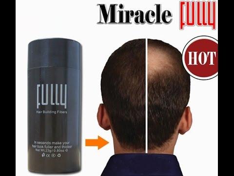 Выпадение волос при гипотиреозе-лечение