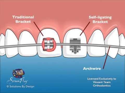 Kawat Gigi Self Ligating- Global Estetik Dental Care