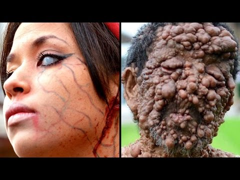 10 Bizarre Diseases With No Cure And Strangest Medical Conditions