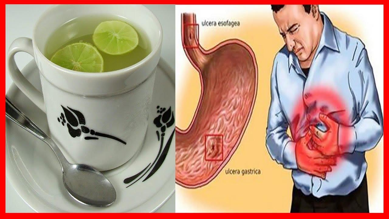Refluxo e remedio gastrite