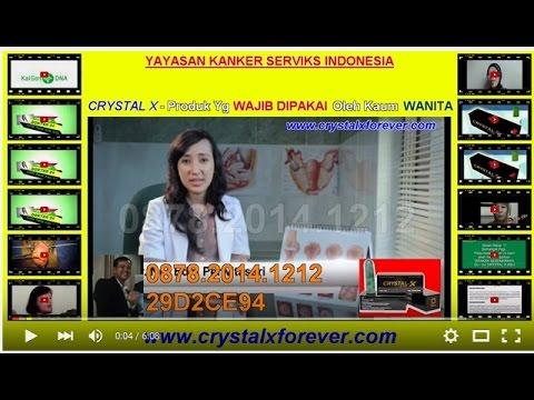 Cara Mengobati Dan Mencegah Kanker Serviks - YouTube