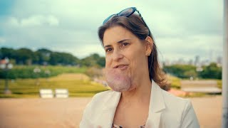 Living With My Facial Tumour | BODY BIZARRE Episode 2 Trailer
