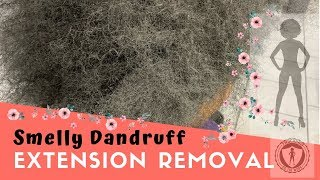 Smelly Dandruff Extension Removal