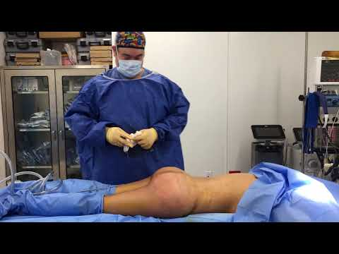 Tummy Tuck and BBL part 1