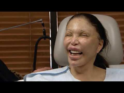 10 Worst Cases Of Plastic Surgery Gone Wrong