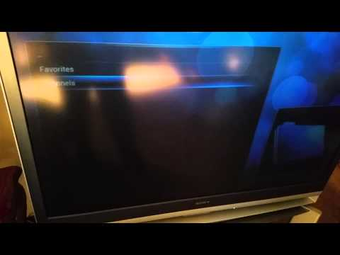 HDHomerun Prime with XBMC on Amazon Fire TV