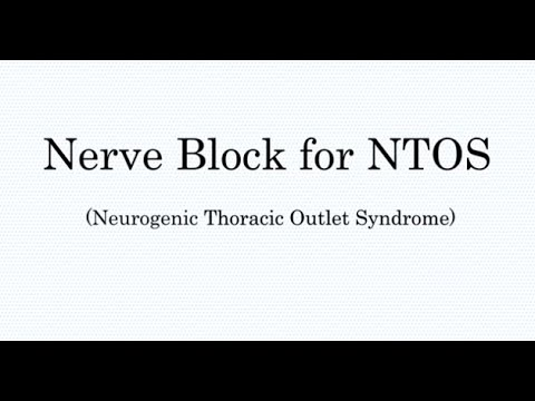 Nerve Block Treatment For Thoracic Outlet Syndrome (TOS)