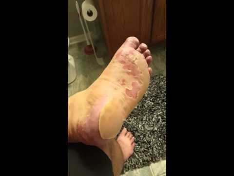 The aftermath of adult hand foot mouth disease