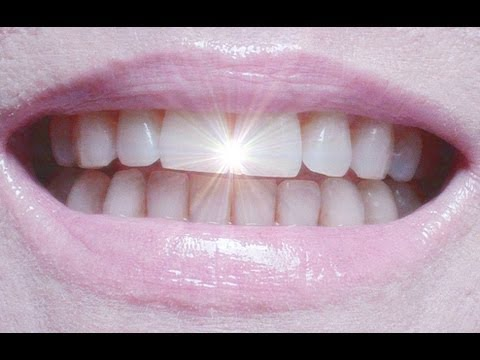 Coconut Oil Baking Soda Teeth Whitening Update Youtube
